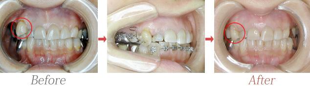 犬歯唇側転位