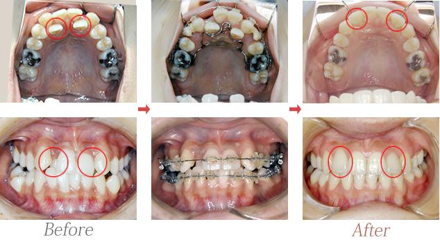 上顎側切歯舌側転位